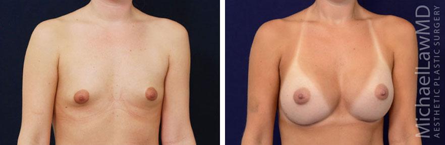 tuberous-breast-02o
