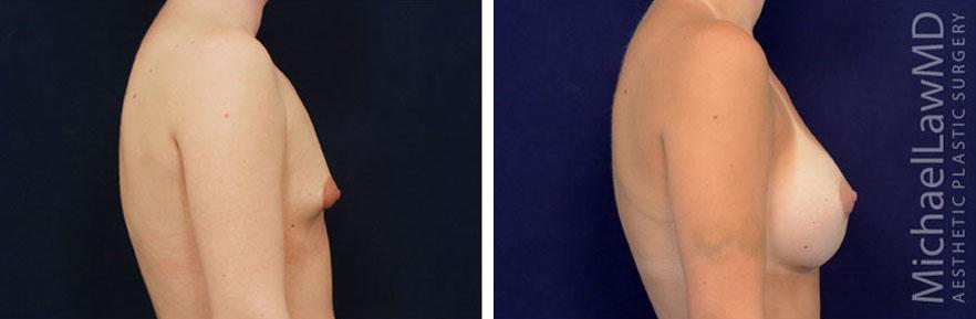 tuberous-breast-02s