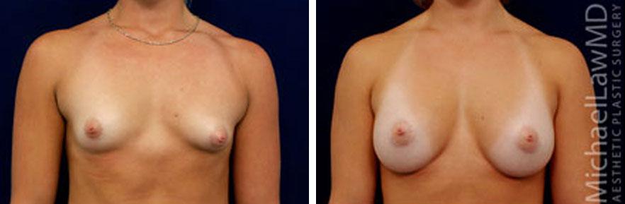 tuberous-breast-03f