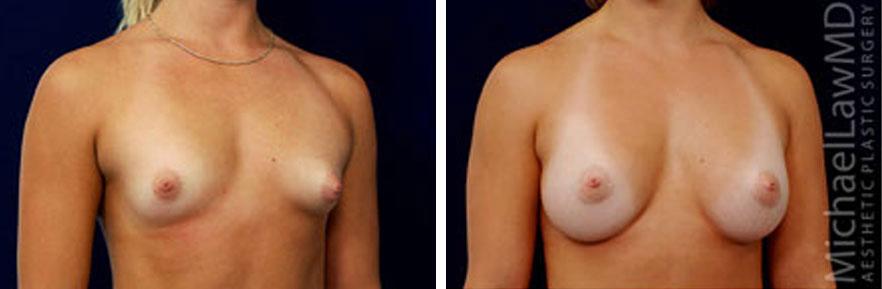 tuberous-breast-03o