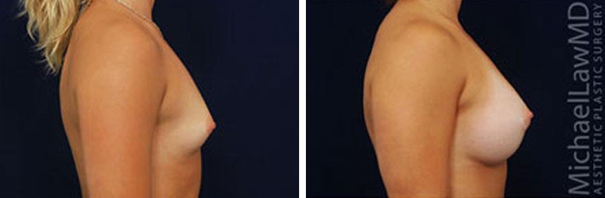 tuberous-breast-03s