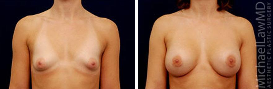 tuberous-breast-04f