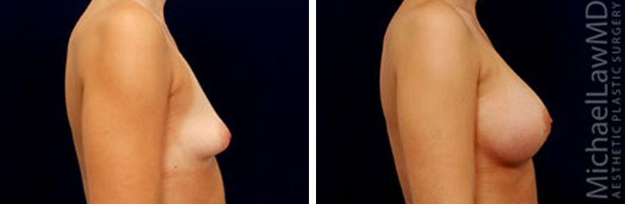 tuberous-breast-04s