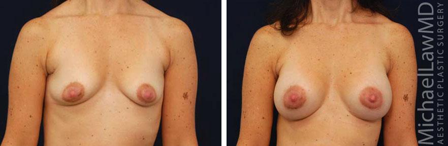 tuberous-breast-05f