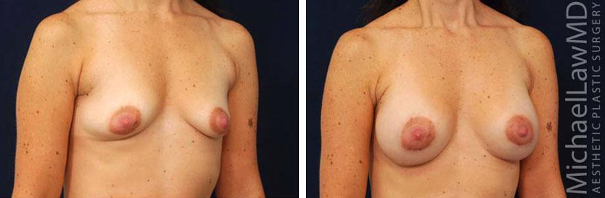 tuberous-breast-05o