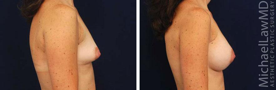 tuberous-breast-05s