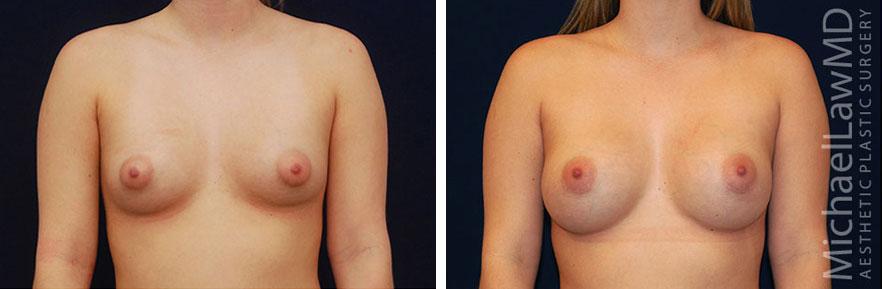 tuberous-breast-06f