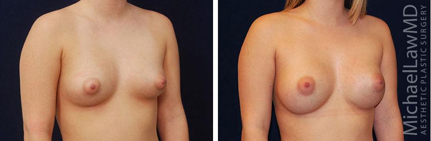 tuberous-breast-06o