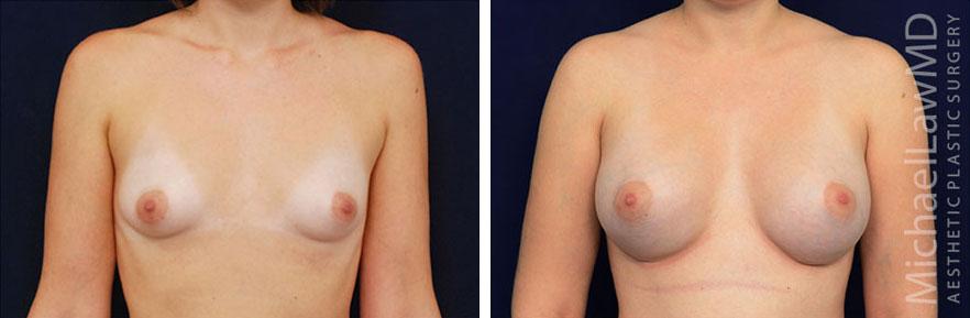 tuberous-breast-08f