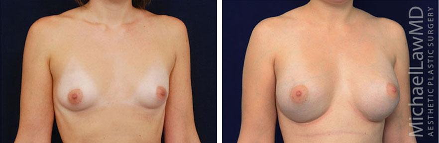 tuberous-breast-08o