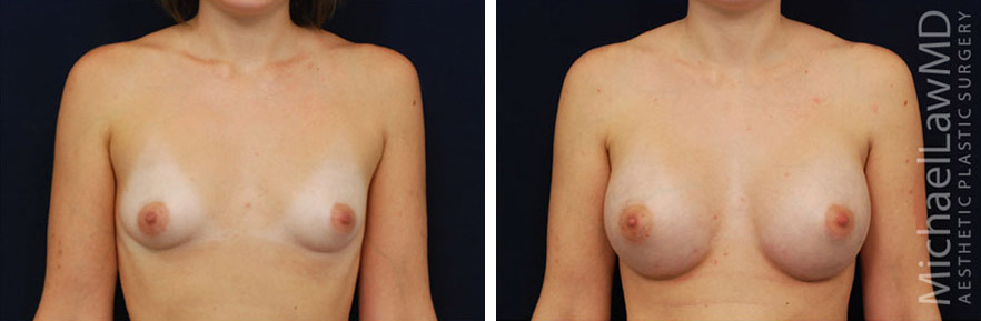 tuberous-breast-09f