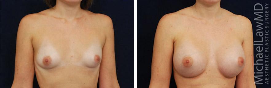 tuberous-breast-09o