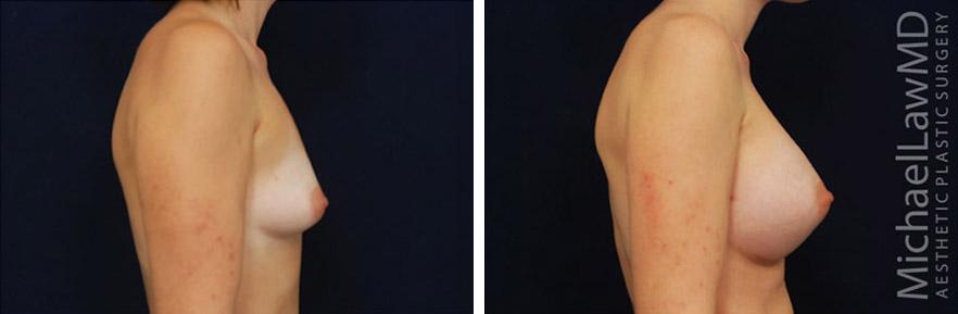 tuberous-breast-09s