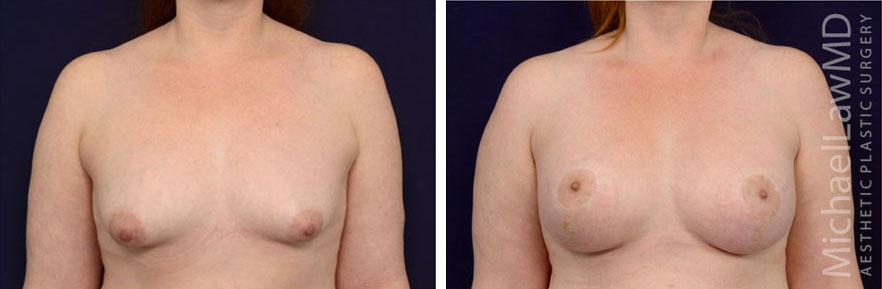 tuberous-breast-10f