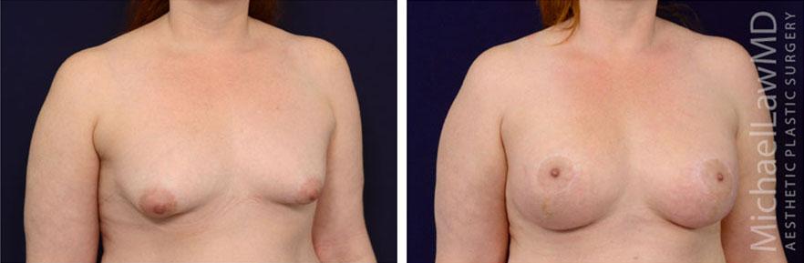 tuberous-breast-10o
