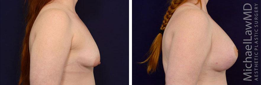 tuberous-breast-10s