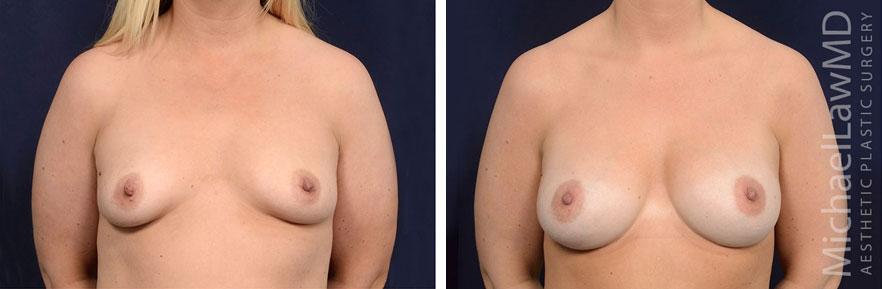 tuberous-breast-12f
