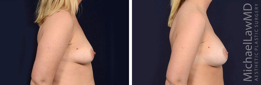 tuberous-breast-12s